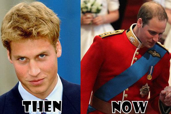 principe-william-ahora